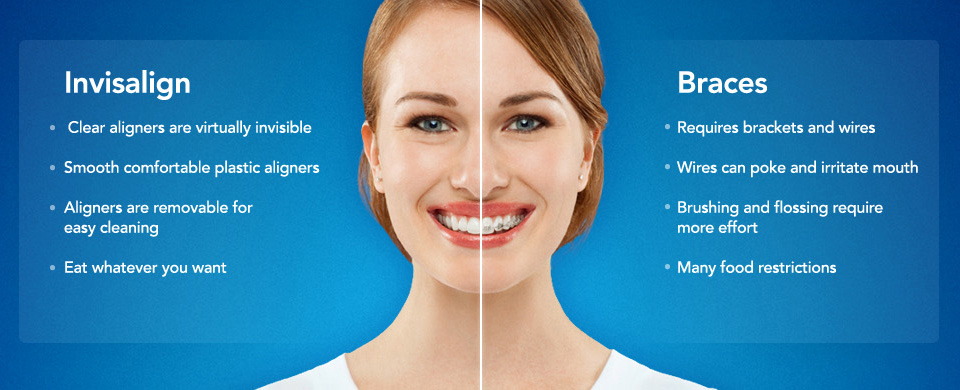 An Image Comparing Invisalign Orthodontic Teeth Aligners Versus Braces