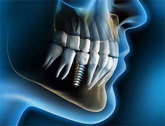 chicago dental implants
