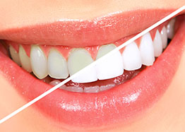 A bright Smile at Smile First Dentist Chicago