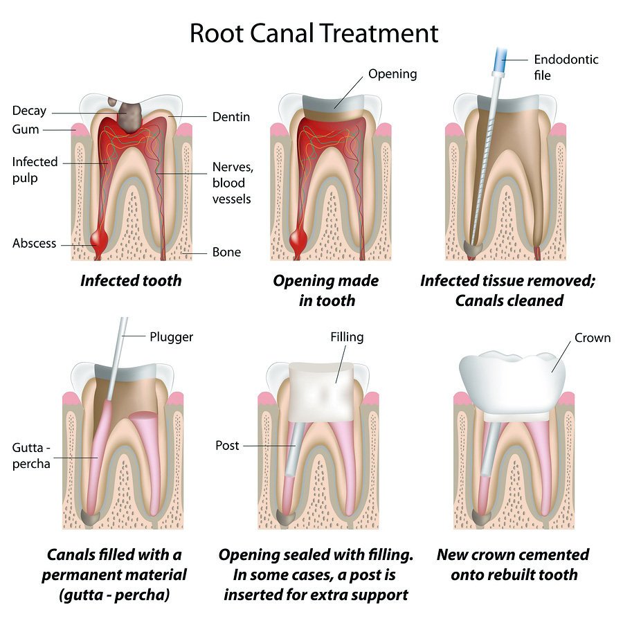 An Image Of The Steps For A Root Canal Therapy